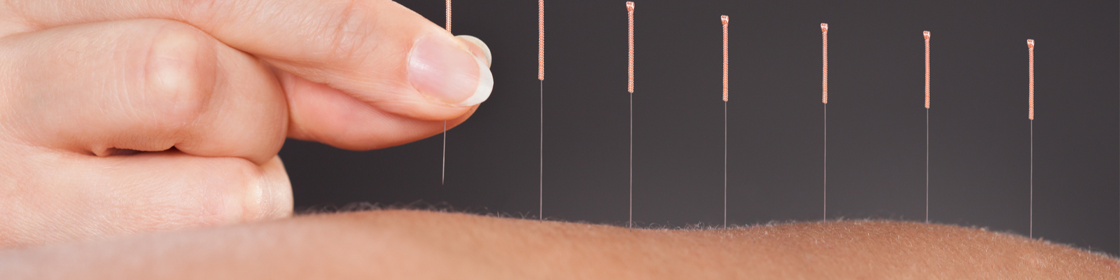 Acupuncture Needles Back