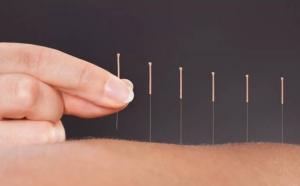 Menopause Acupuncture